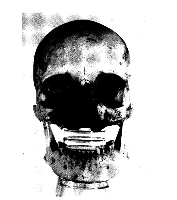 """The skull of an ancient Egyptian woman whose face was eaten off by cancer. From Eugen Strouhal, """"Ancient Egyptian Case of Carcinoma"""""""